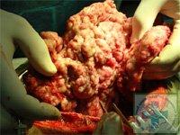 Фото 2. Вид опухоли средостения и перикарда во время операции