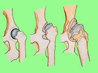 диагностика дисплазии тазобедренных суставов у собак
